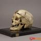 Crâne de Mr Giuseppe Villella